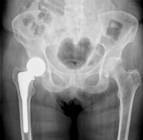Stryker LFIT Hip replacement lawsuit